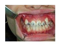 Orthodontics Before